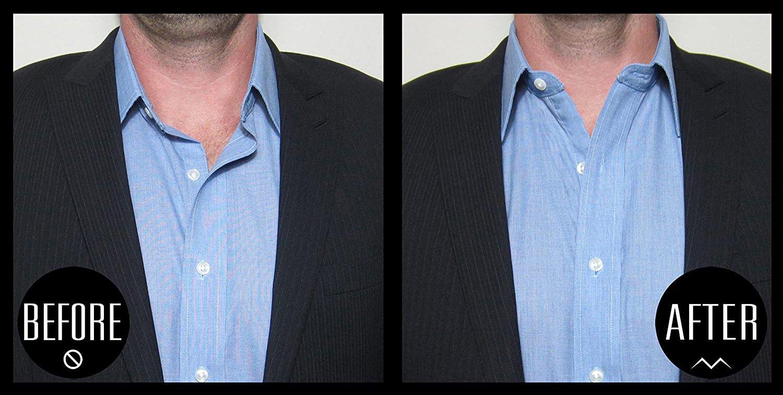 9-million-dollar-collar
